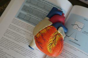 Atrial Fibrillation - Tsougos Ilias- Cardiologist