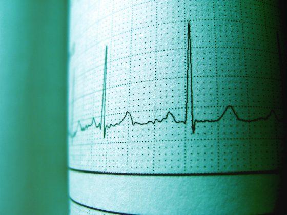 Electrocardiogram - Tsougos Ilias - Cardiologist