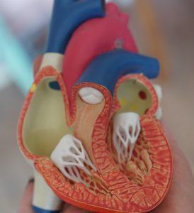 Valve stenosis - Tsougos Ilias- Cardiologist