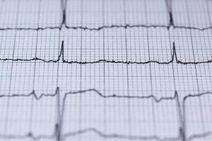 extra-systolic arrhythmia - Tsougos Ilias- Cardiologist